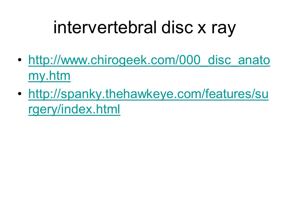intervertebral disc x ray