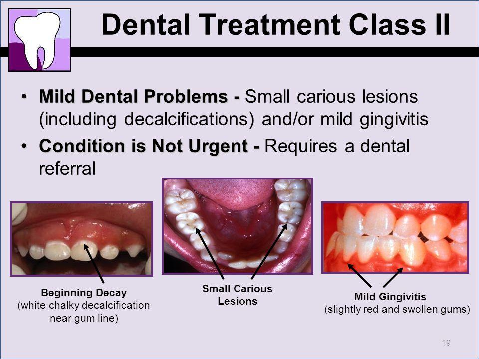 CHDP Dental Training: Focus on PM 160 Screening - ppt download