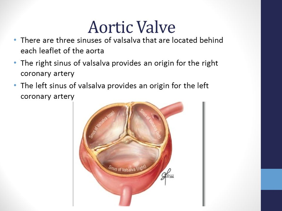 Aortic Stenosis and TAVR - ppt video online download