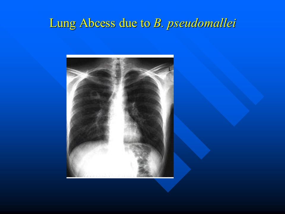 Lung Abcess due to B. pseudomallei