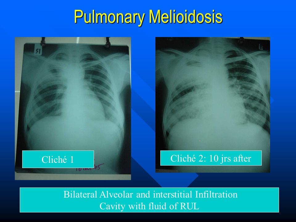 Pulmonary Melioidosis