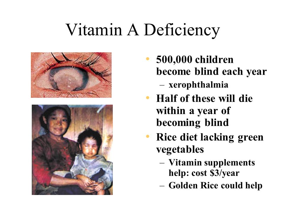 Vitamin A Deficiency 500,000 children become blind each year