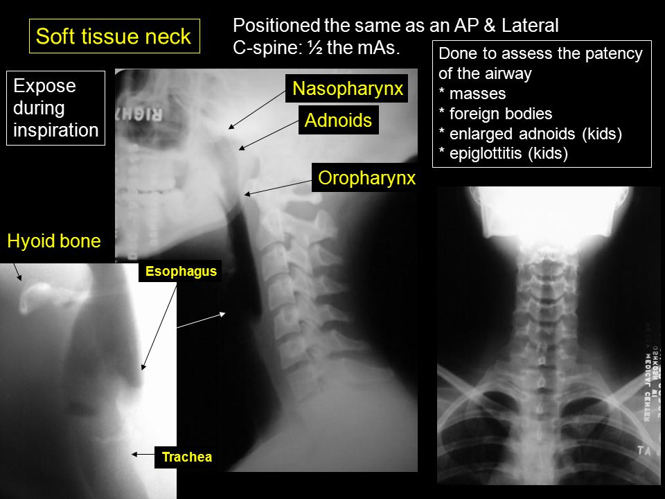 RDSC 233 Unit 8 Radiography of the pharnyx & esophagus Film Critique ...
