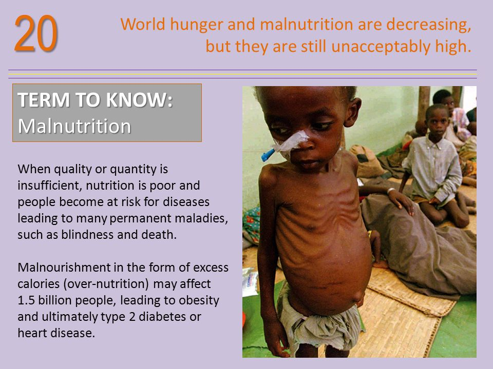 20 TERM TO KNOW: Malnutrition