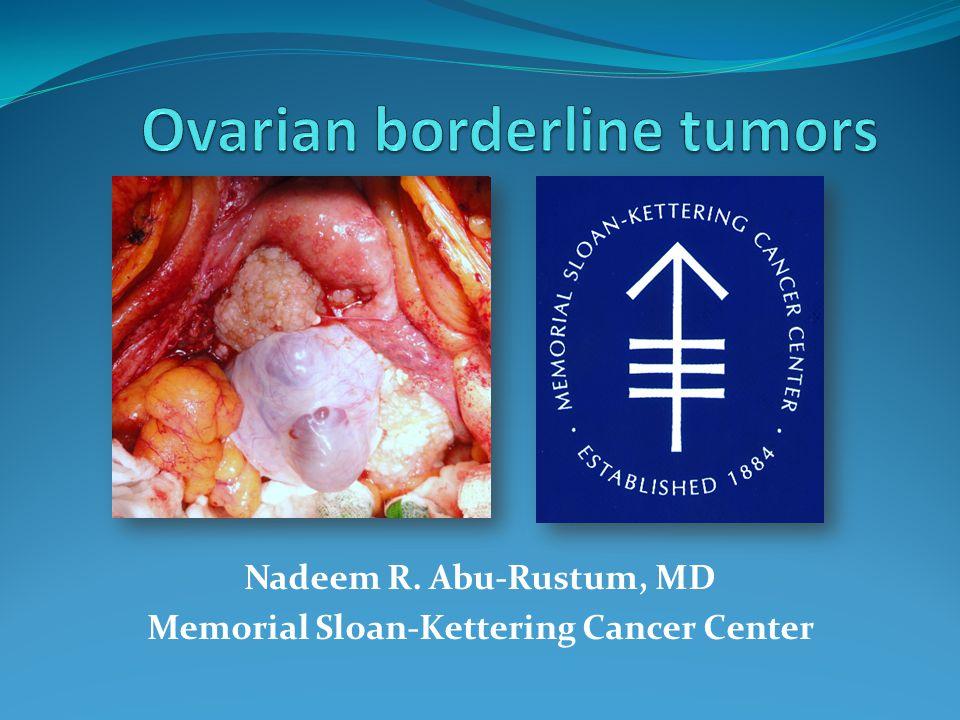 Ovarian Borderline Tumors Ppt Video Online Download