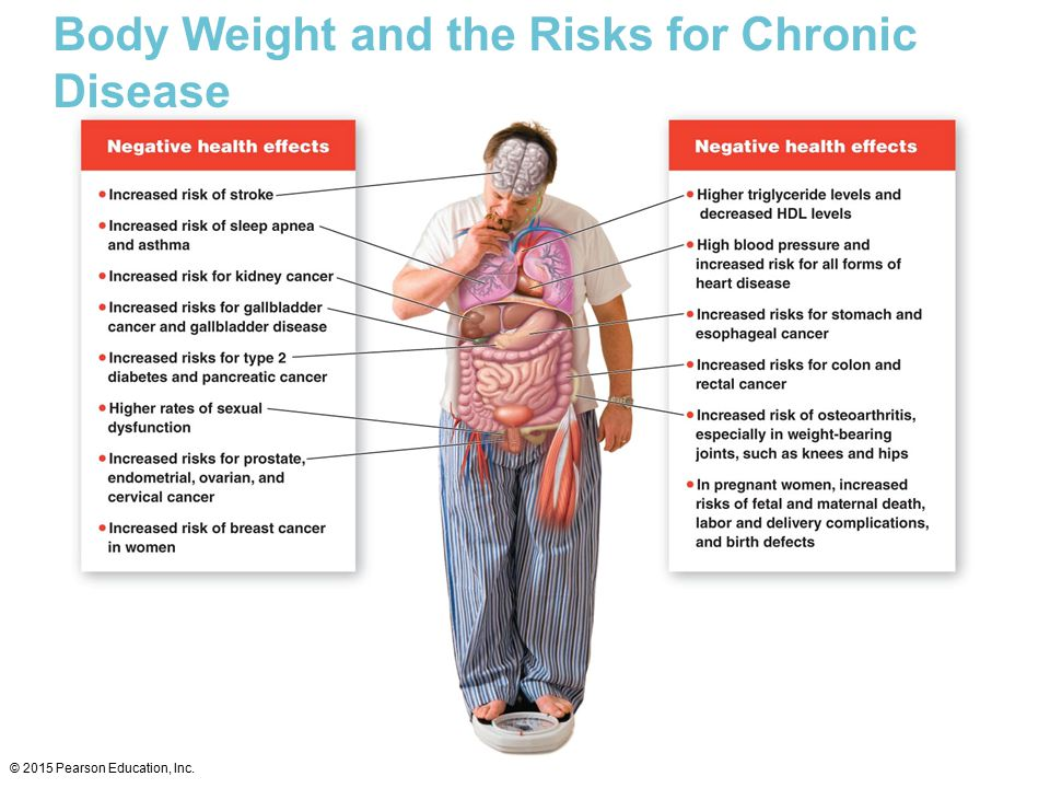 Body Weight and the Risks for Chronic Disease