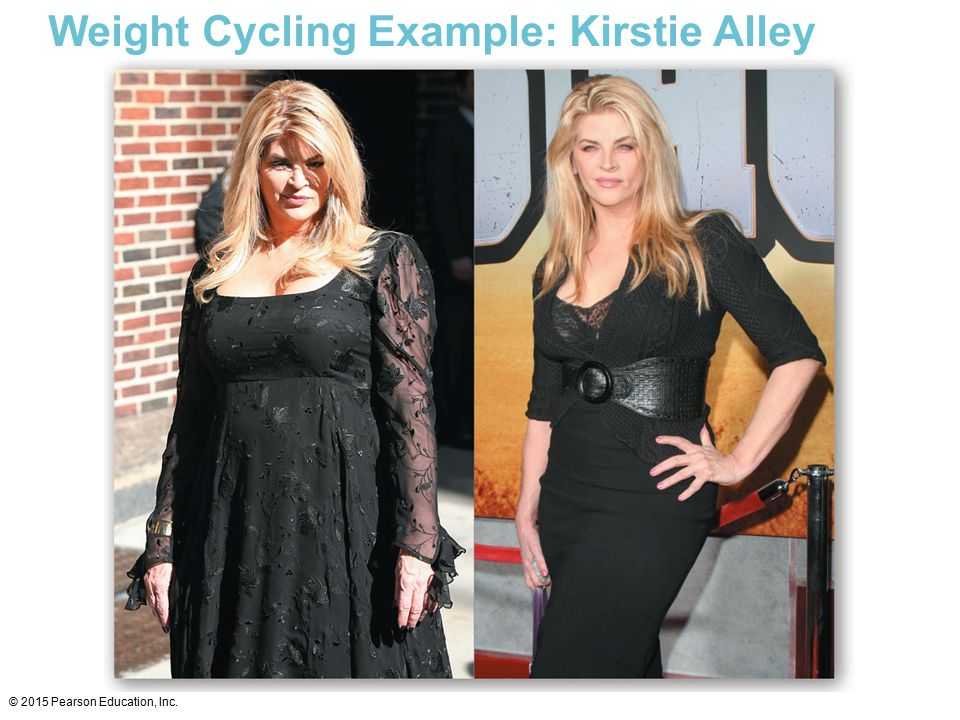 Weight Cycling Example: Kirstie Alley