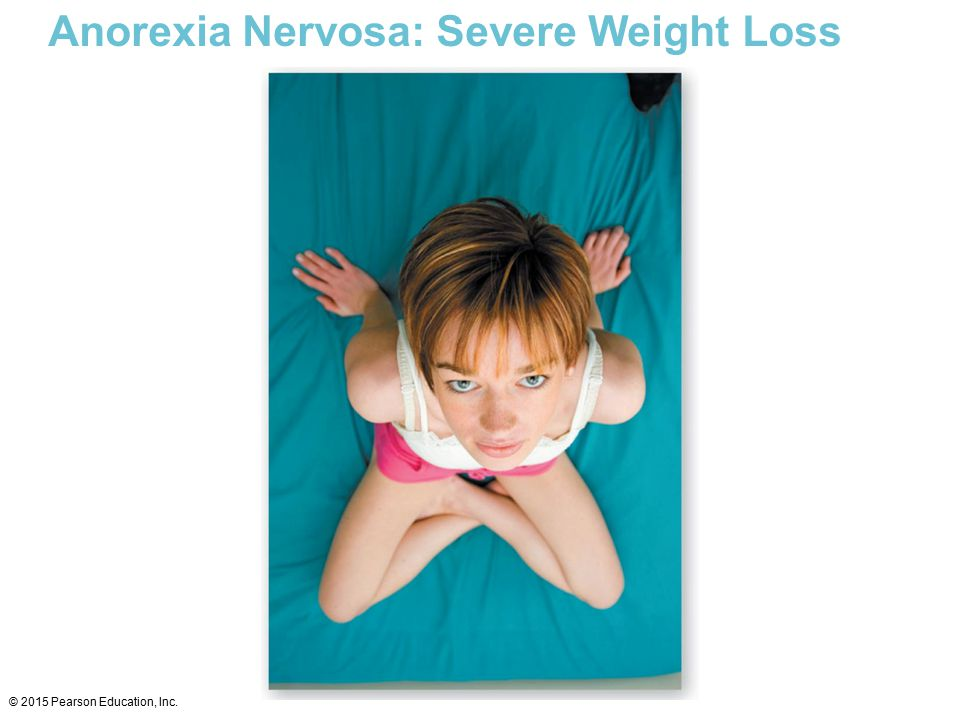 Anorexia Nervosa: Severe Weight Loss