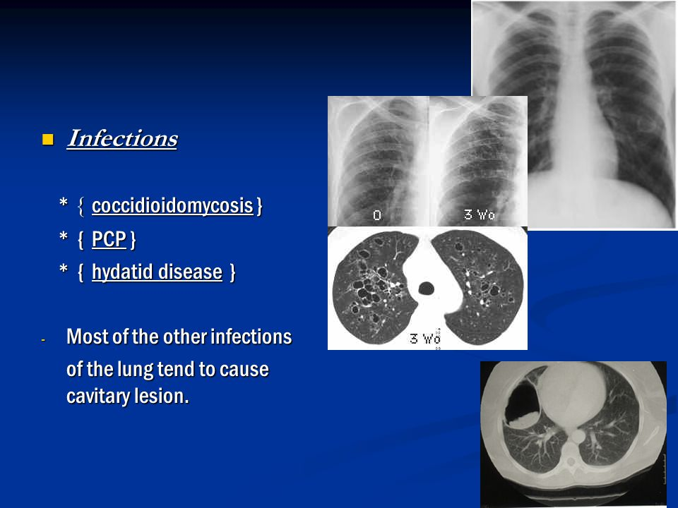Infections * { coccidioidomycosis } * { PCP } * { hydatid disease }