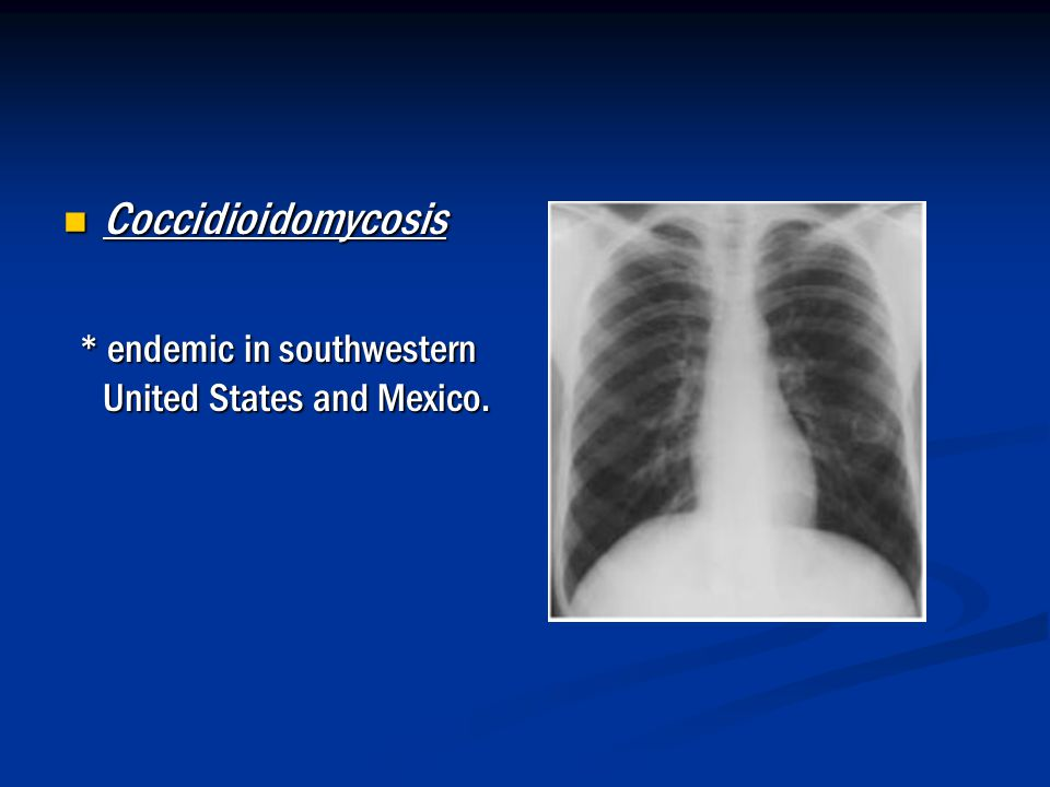 Coccidioidomycosis * endemic in southwestern United States and Mexico.