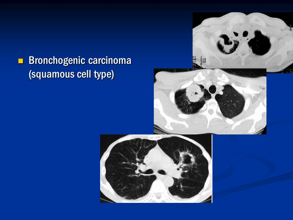 Bronchogenic carcinoma (squamous cell type)