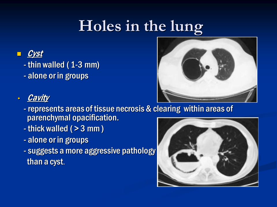 Holes in the lung Cyst - thin walled ( 1-3 mm) - alone or in groups