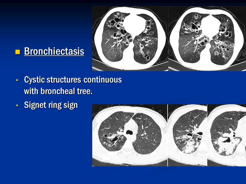 Bronchiectasis Cystic structures continuous with broncheal tree.