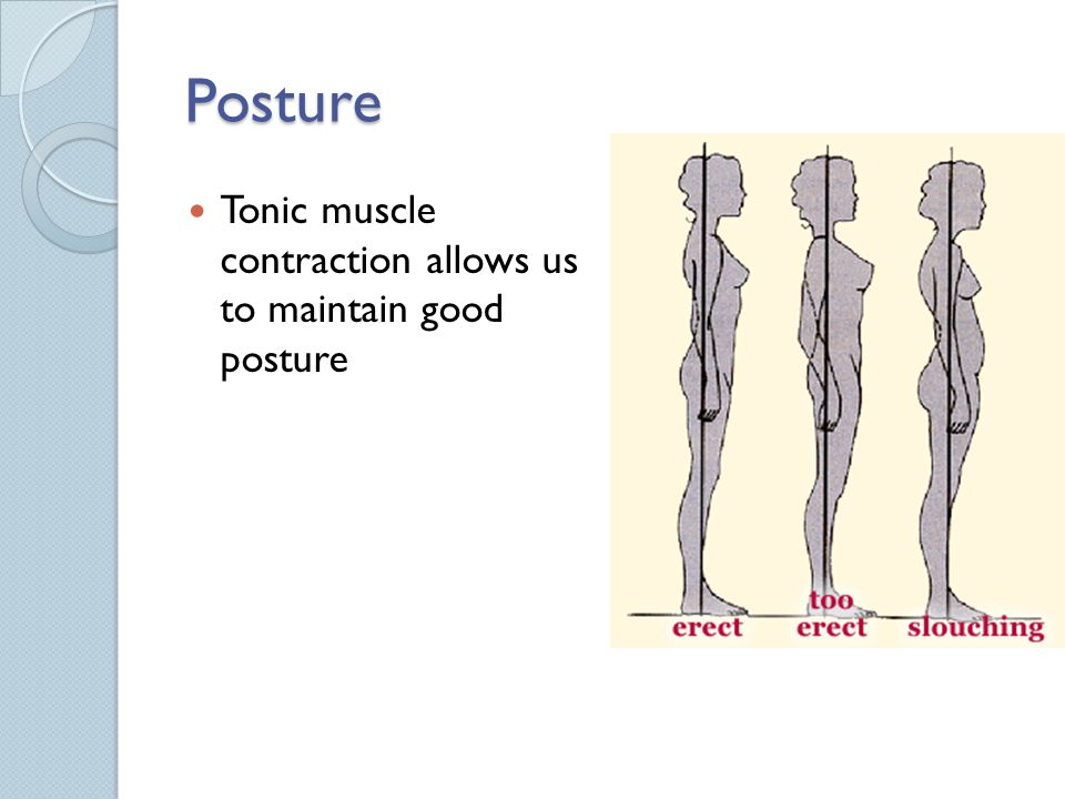 Posture Tonic muscle contraction allows us to maintain good posture