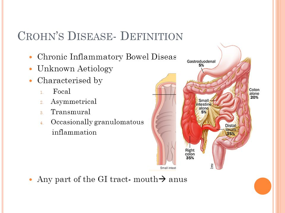INFLAMMATORY BOWEL DISEASE - ppt video online download