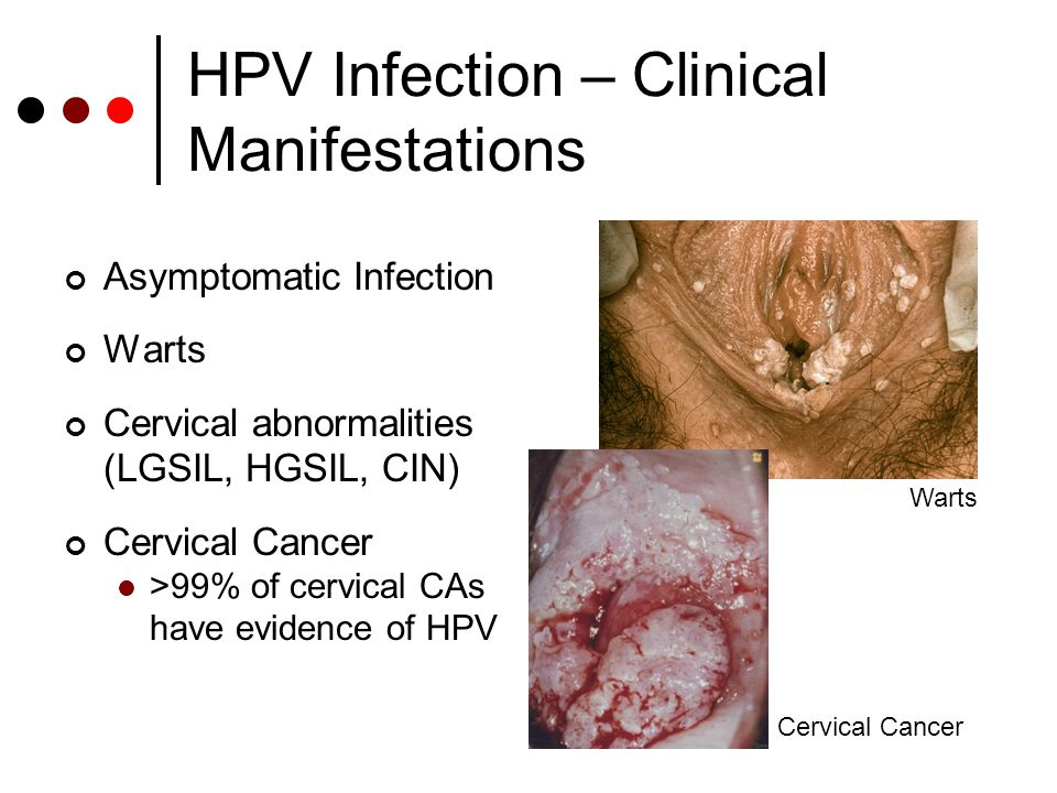 Untangling Controversies: HPV Vaccine & STI Screening - ppt video