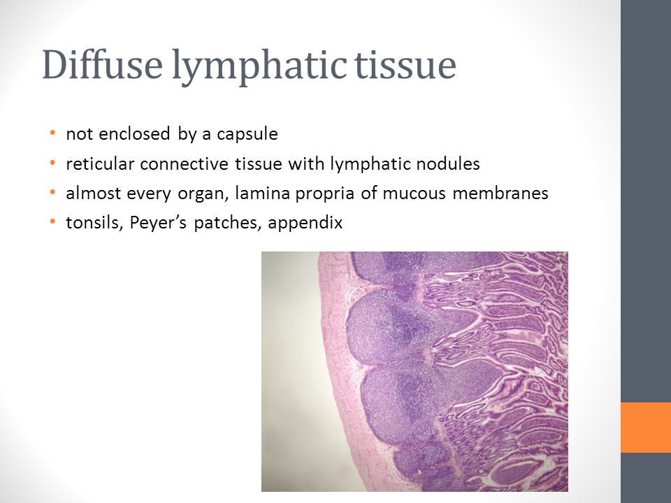 Diffuse lymphatic tissue