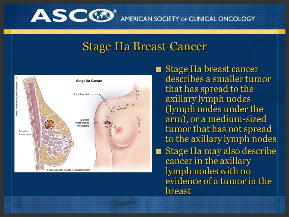 Stage IIa Breast Cancer