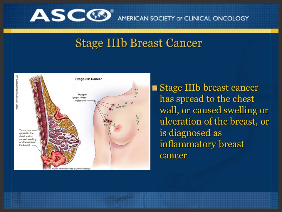 Stage IIIb Breast Cancer