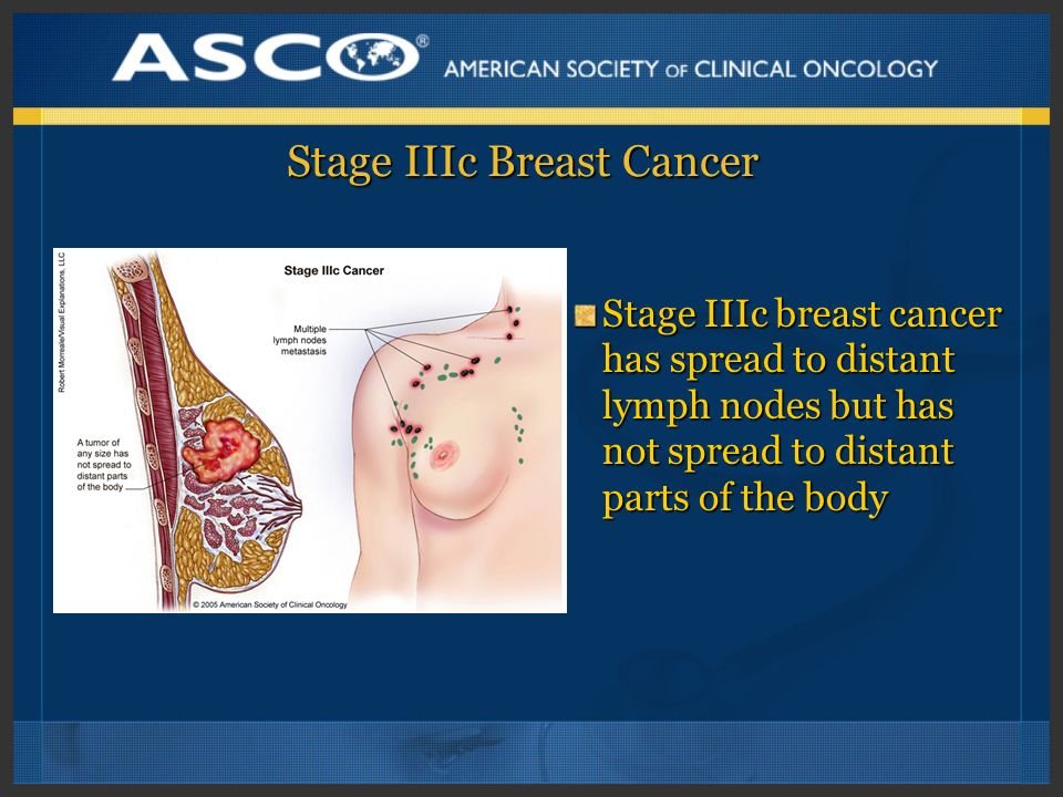 Stage IIIc Breast Cancer