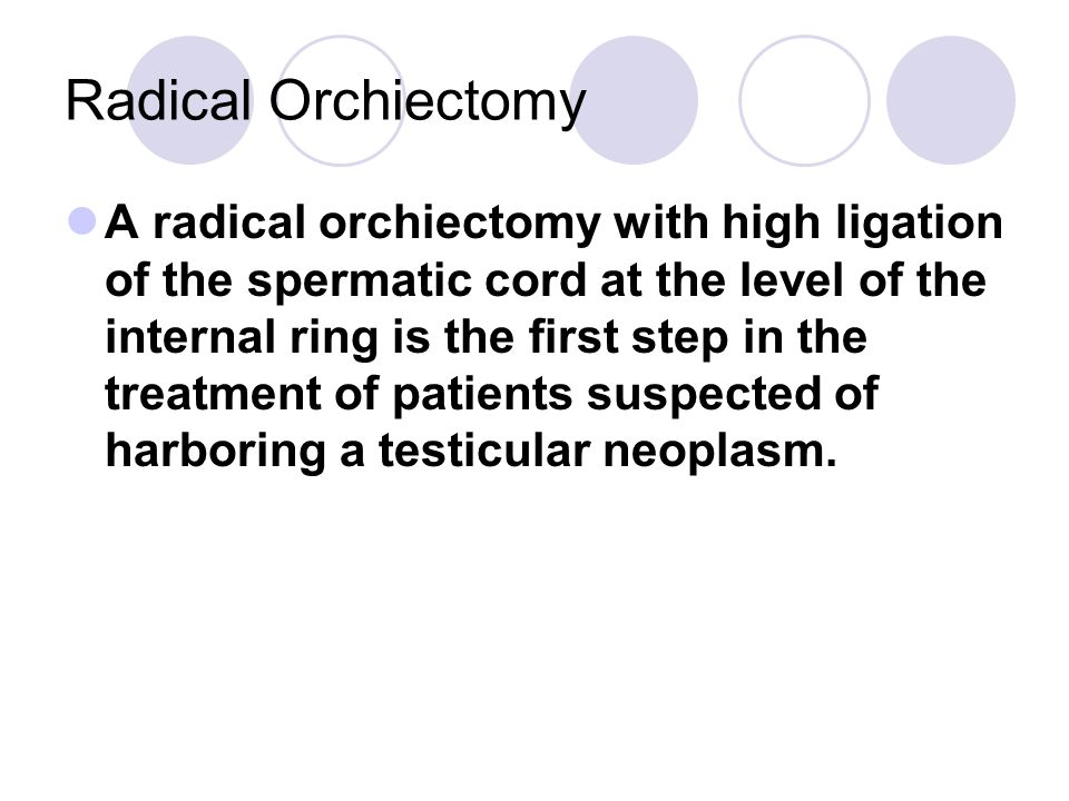 Of The Spermatic Cord At The Level Of The Internal Ring Is The First Step In The Treatment Of Patients Suspected Of Harboring A Testicular Neoplasm