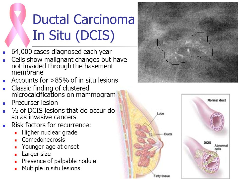 men-squeezing-undifferential-carcinoma-in-young-girl