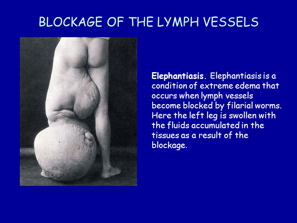 BLOCKAGE OF THE LYMPH VESSELS