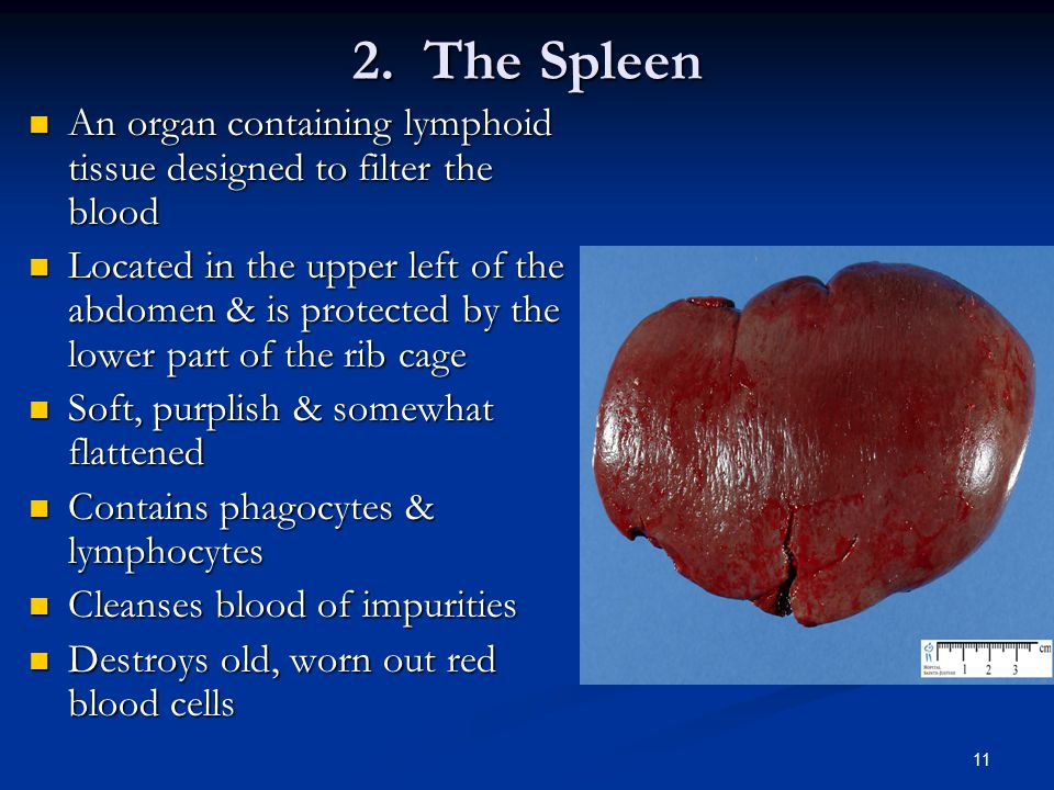 2. The Spleen An organ containing lymphoid tissue designed to filter the blood.