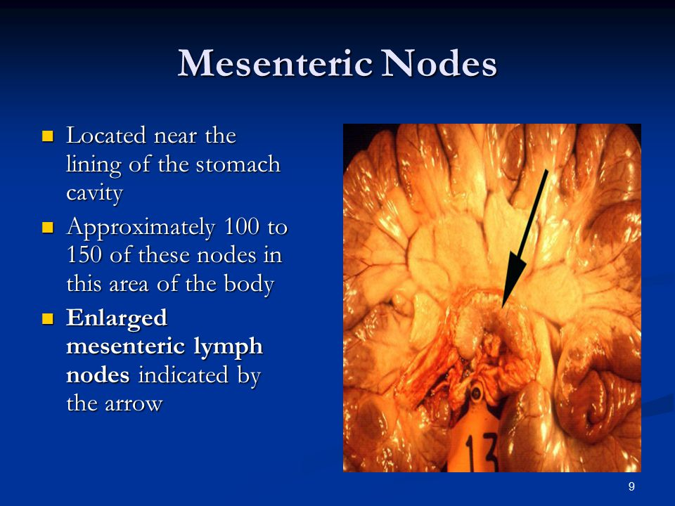 Mesenteric Nodes Located near the lining of the stomach cavity