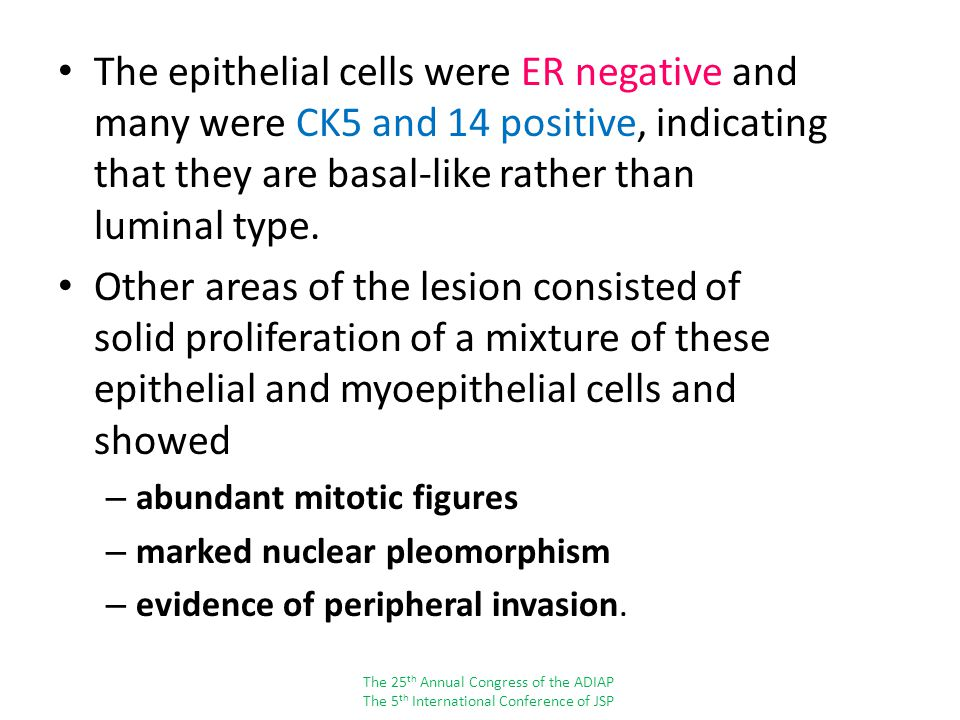The epithelial cells were ER negative and many were CK5 and 14 positive, indicating that they are basal-like rather than luminal type.