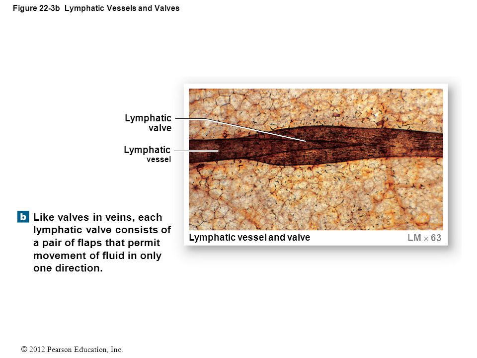 Figure 22-3b Lymphatic Vessels and Valves