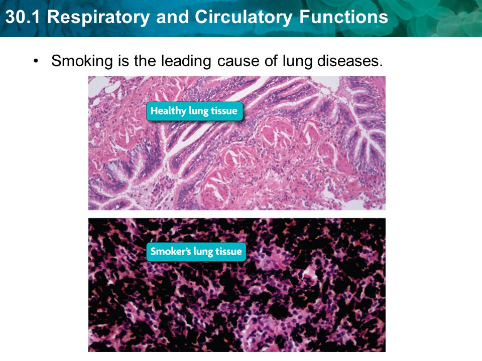 Smoking is the leading cause of lung diseases.