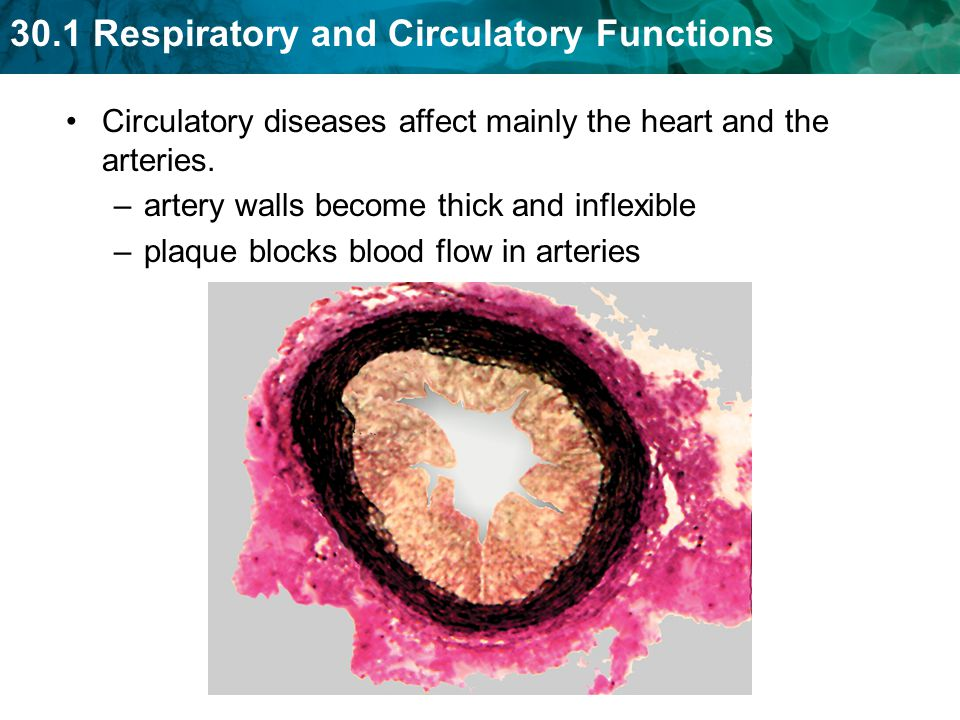 Circulatory diseases affect mainly the heart and the arteries.