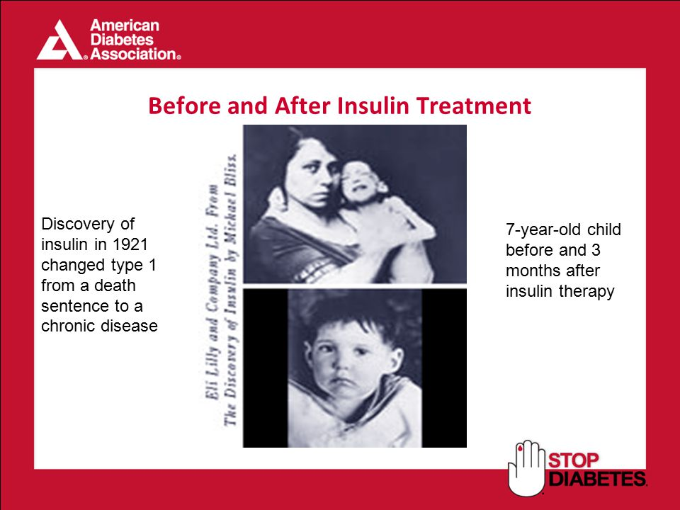 Before and After Insulin Treatment