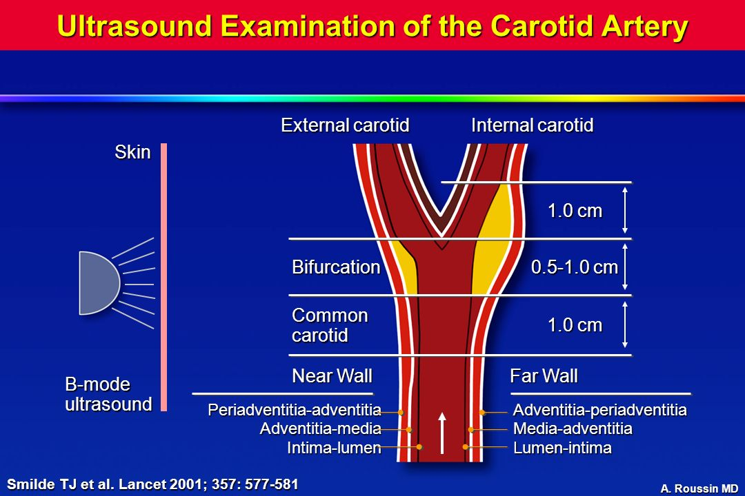 Ultrasound Examination of the Carotid Artery