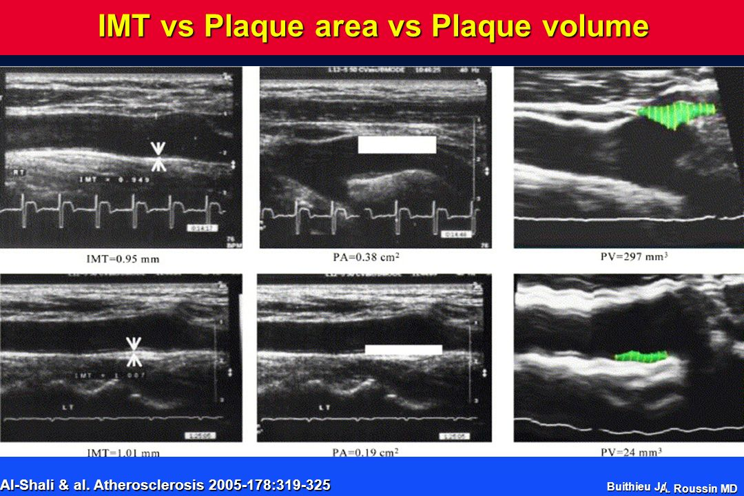 IMT vs Plaque area vs Plaque volume