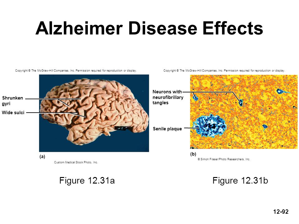 Alzheimer Disease Effects
