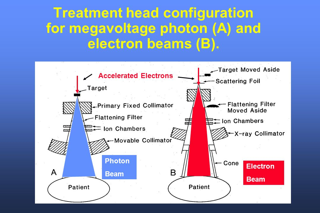 Treatment head configuration for megavoltage photon (A) and electron beams (B).