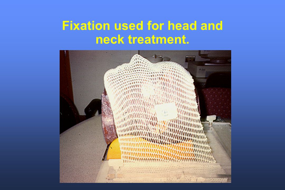 Fixation used for head and neck treatment.