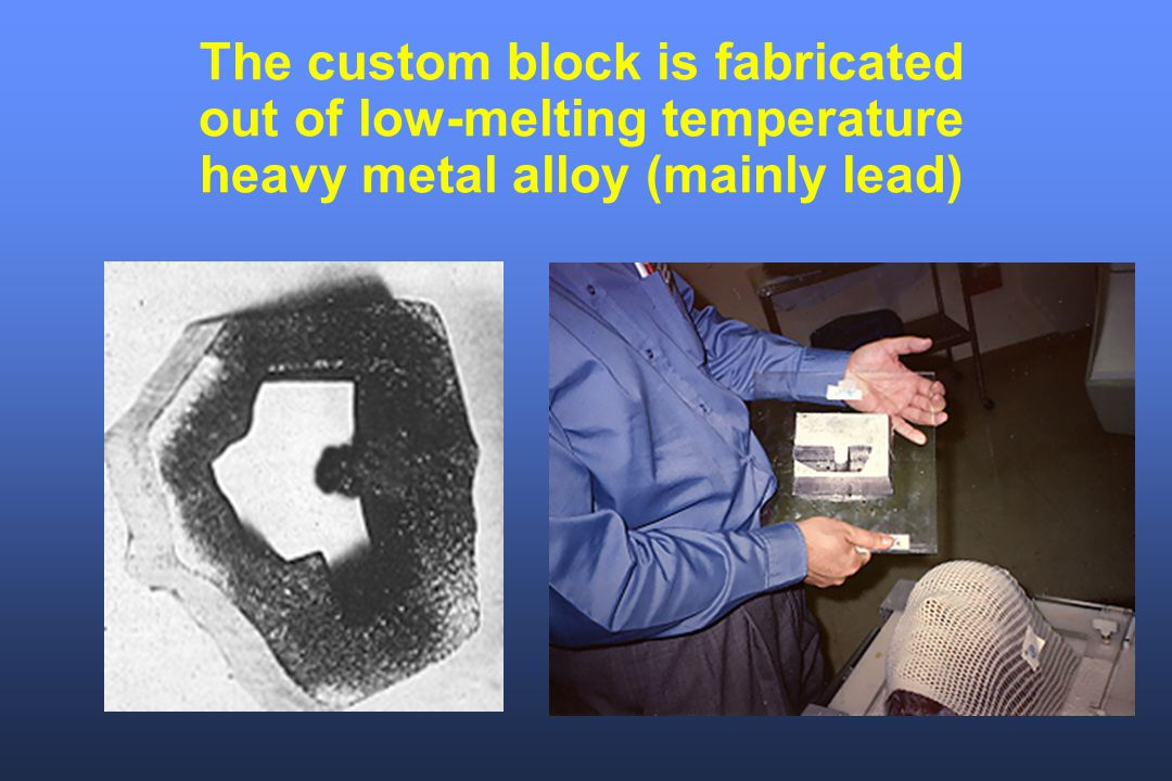 The custom block is fabricated out of low-melting temperature heavy metal alloy (mainly lead)