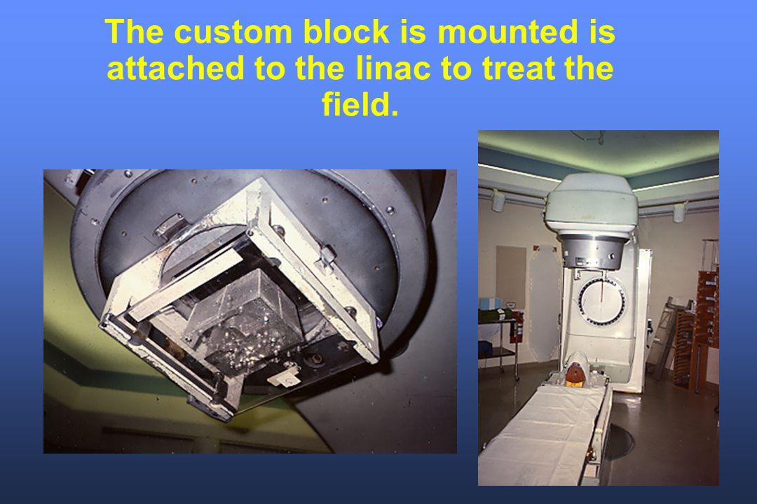 The custom block is mounted is attached to the linac to treat the field.