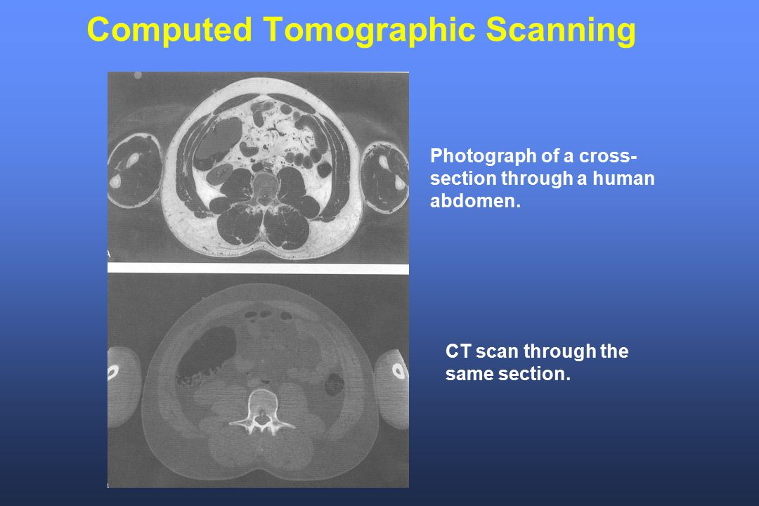 Computed Tomographic Scanning