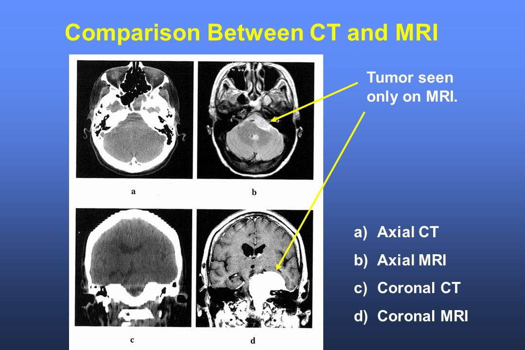 Comparison Between CT and MRI