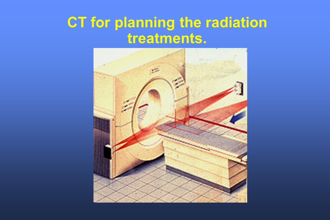CT for planning the radiation treatments.