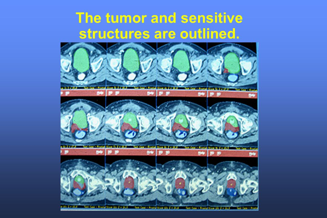 The tumor and sensitive structures are outlined.