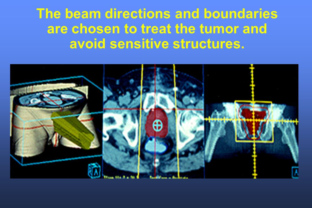The beam directions and boundaries are chosen to treat the tumor and avoid sensitive structures.