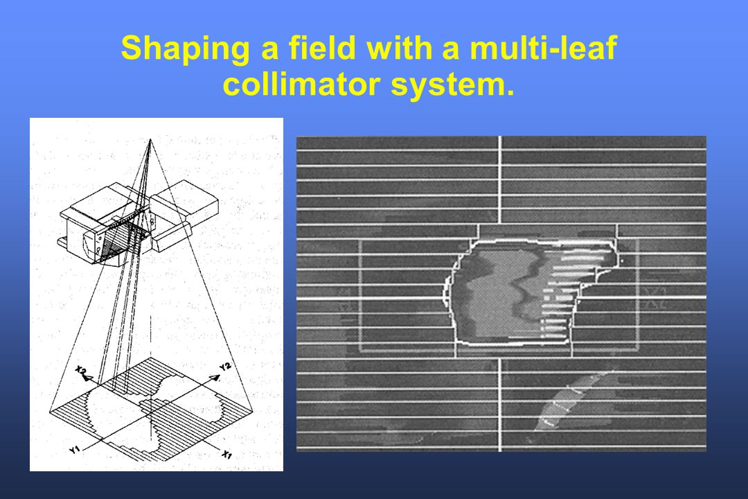 Shaping a field with a multi-leaf collimator system.
