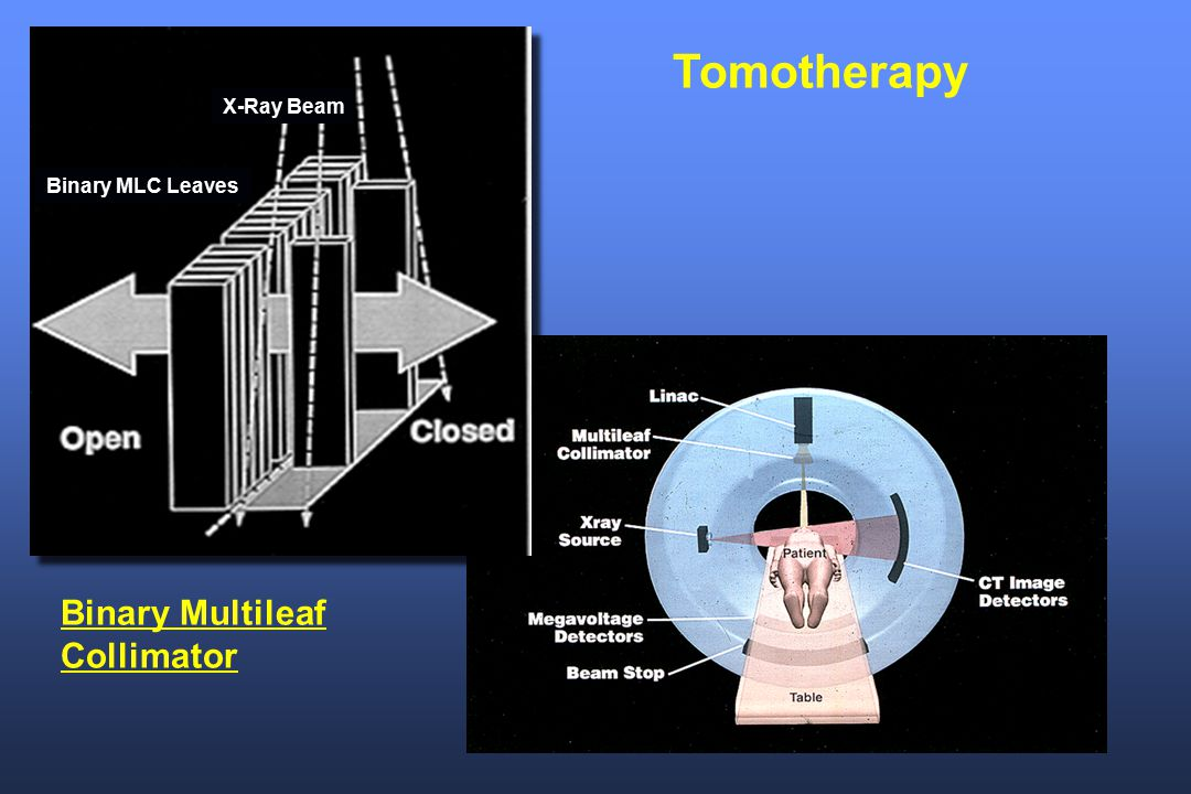 Tomotherapy X-Ray Beam Binary MLC Leaves Binary Multileaf Collimator