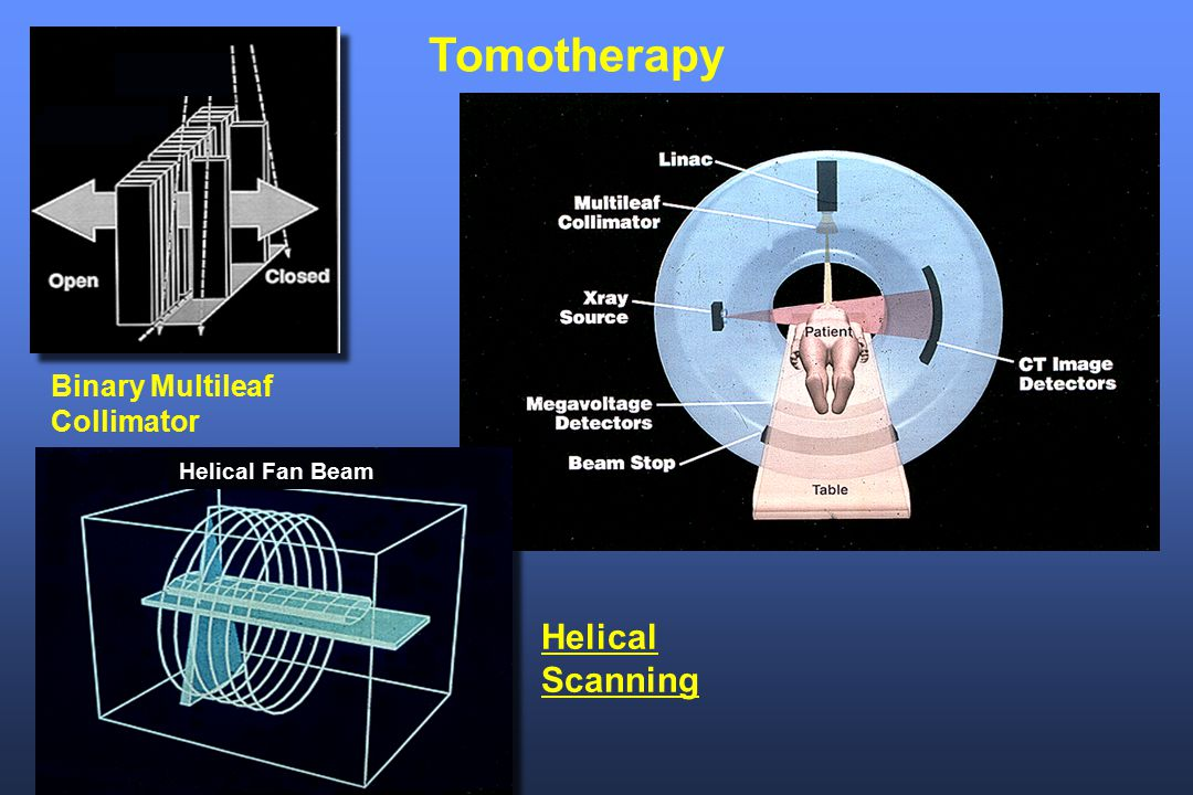 Tomotherapy Helical Scanning Binary Multileaf Collimator