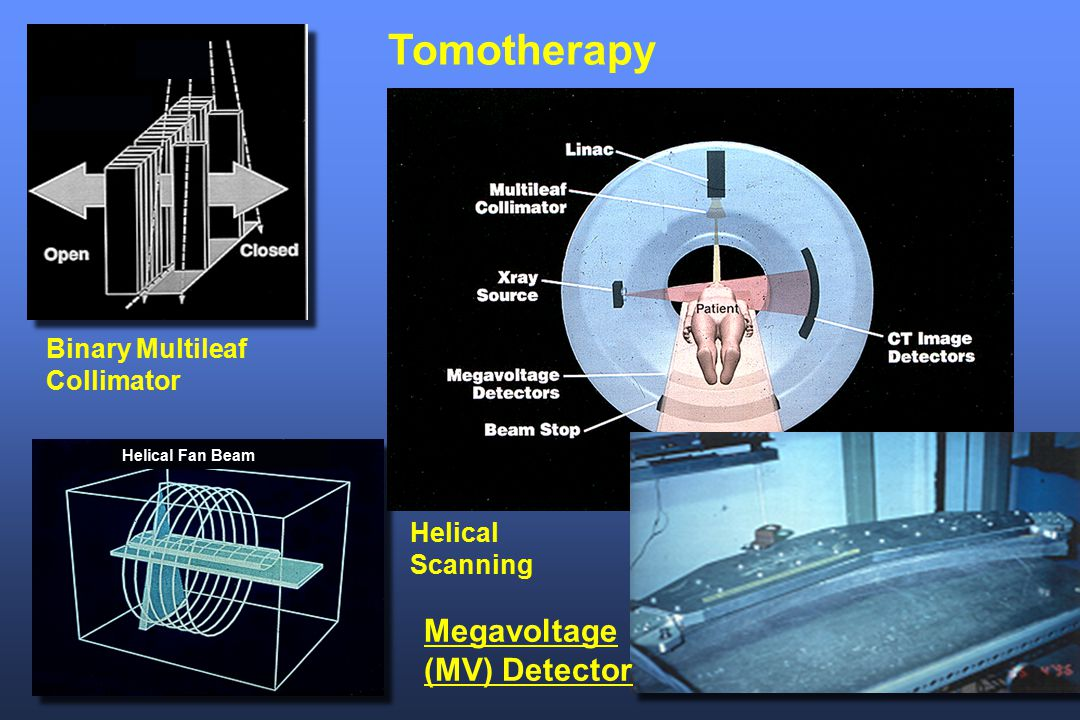 Tomotherapy Megavoltage (MV) Detector Binary Multileaf Collimator